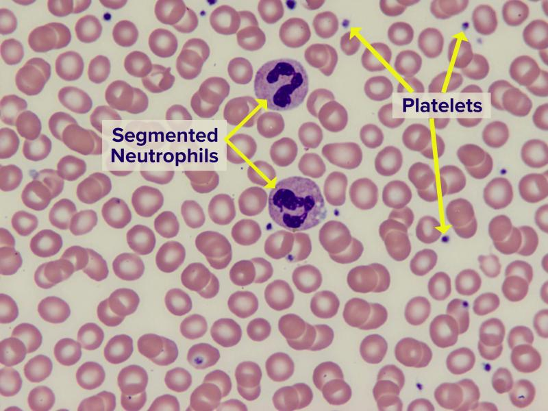 Image of normal blood smear
