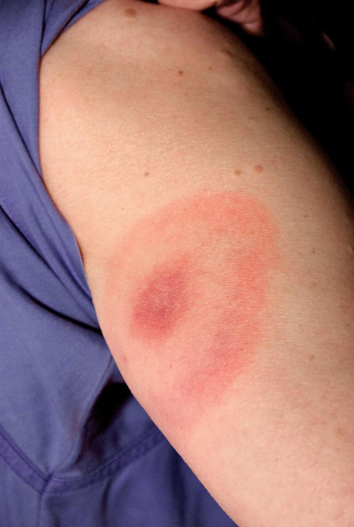 Photo of Lyme disease rash
